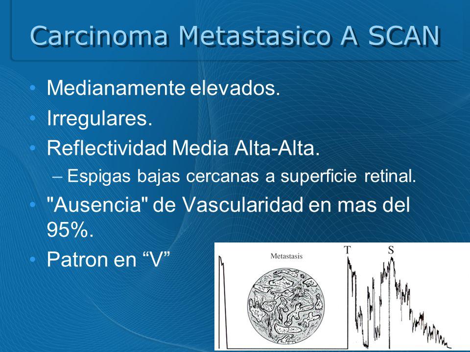 Carcinoma Metastasico A SCAN