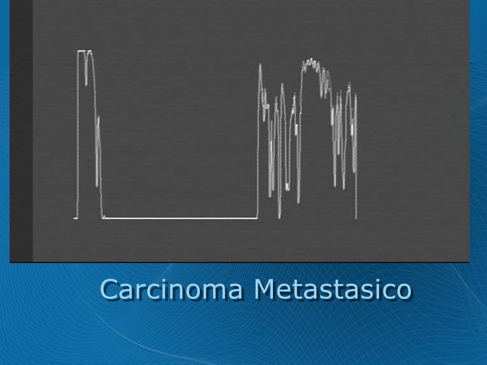 Carcinoma Metastasico