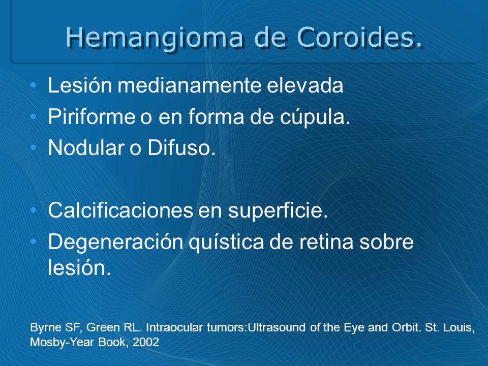Hemangioma de Coroides.