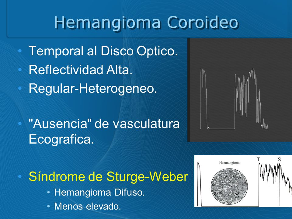 Hemangioma Coroideo Temporal al Disco Optico. Reflectividad Alta.