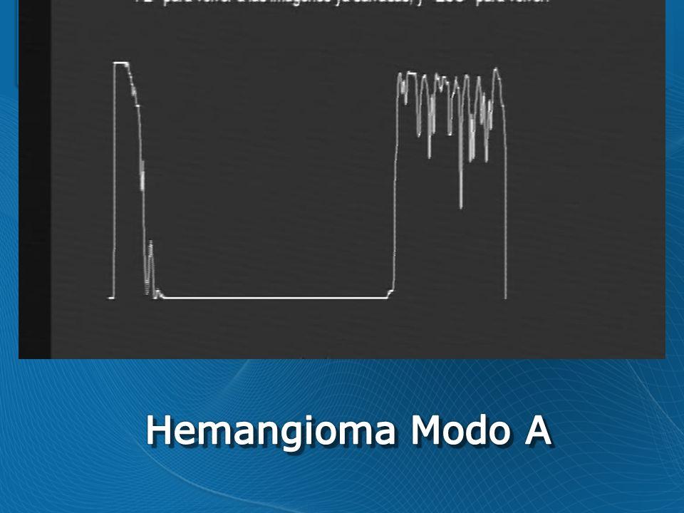 Hemangioma Modo A