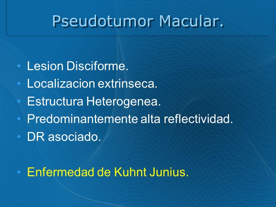 Pseudotumor Macular. Lesion Disciforme. Localizacion extrinseca.
