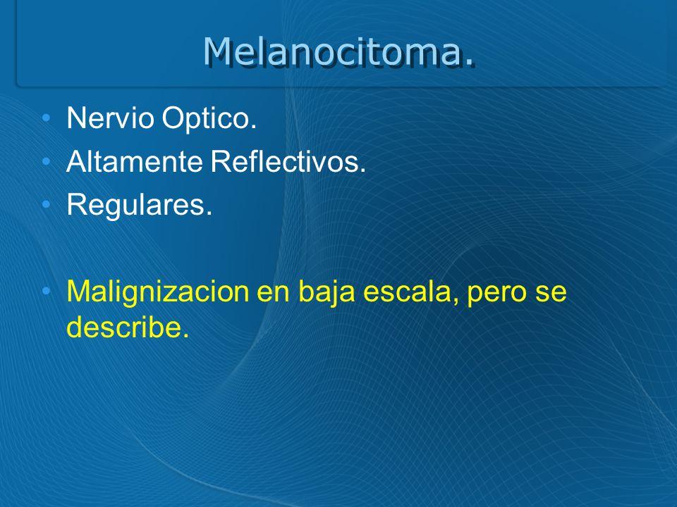 Melanocitoma. Nervio Optico. Altamente Reflectivos. Regulares.