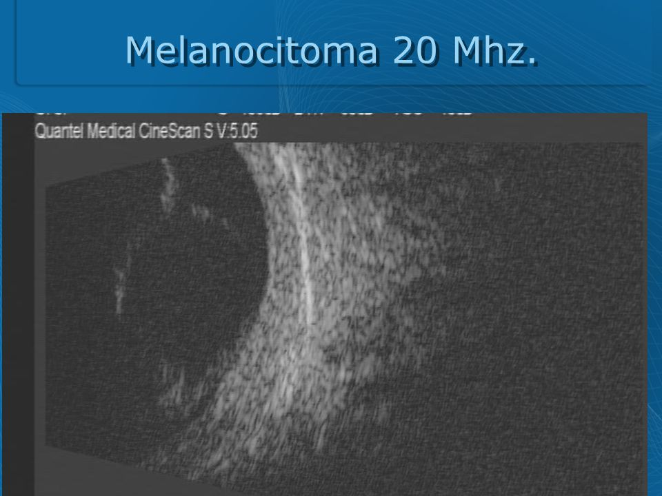 Melanocitoma 20 Mhz.