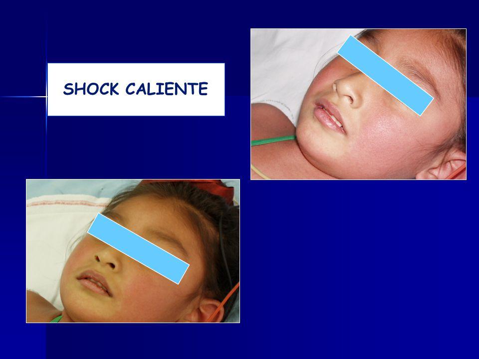 SHOCK CALIENTE 16