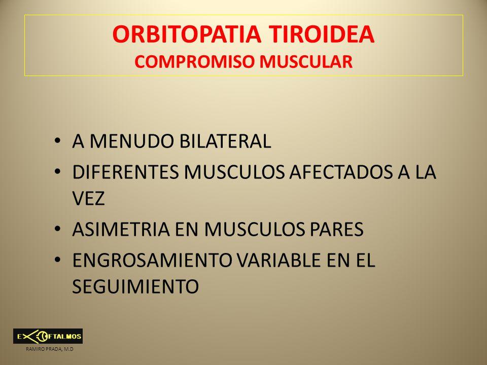 ORBITOPATIA TIROIDEA COMPROMISO MUSCULAR