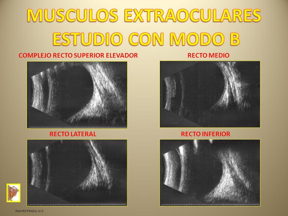 MUSCULOS EXTRAOCULARES ESTUDIO CON MODO B