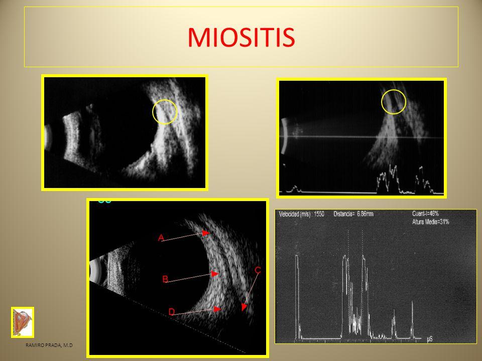 MIOSITIS RAMIRO PRADA, M.D