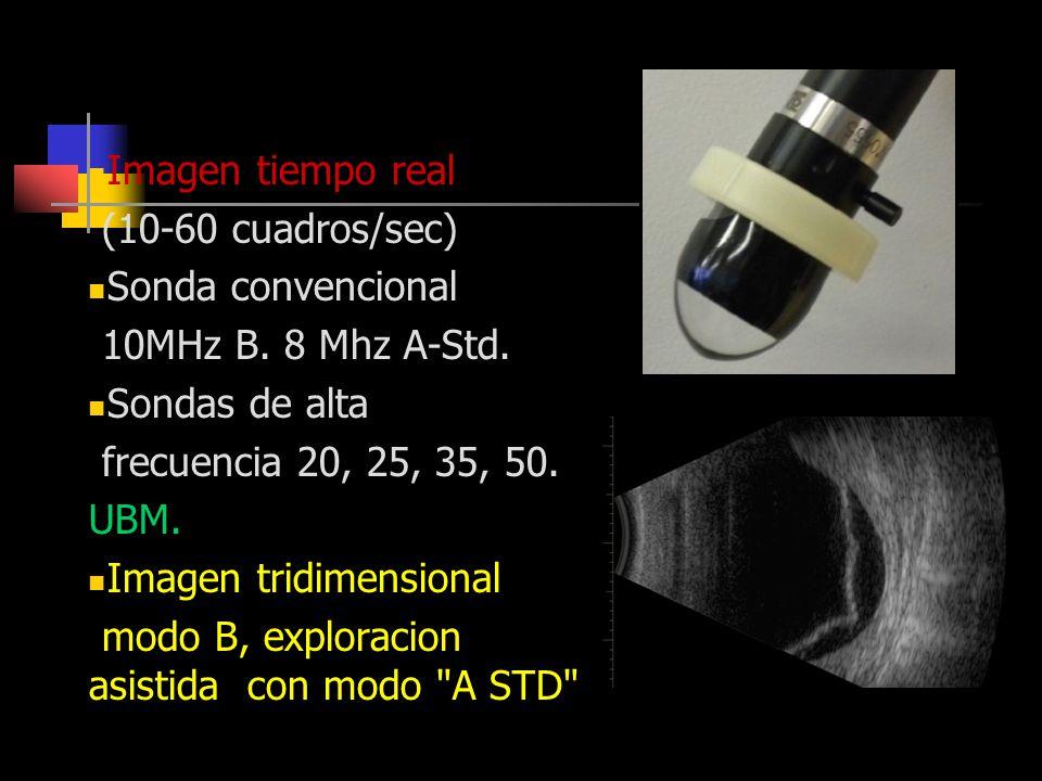 Modo B Imagen tiempo real (10-60 cuadros/sec) Sonda convencional