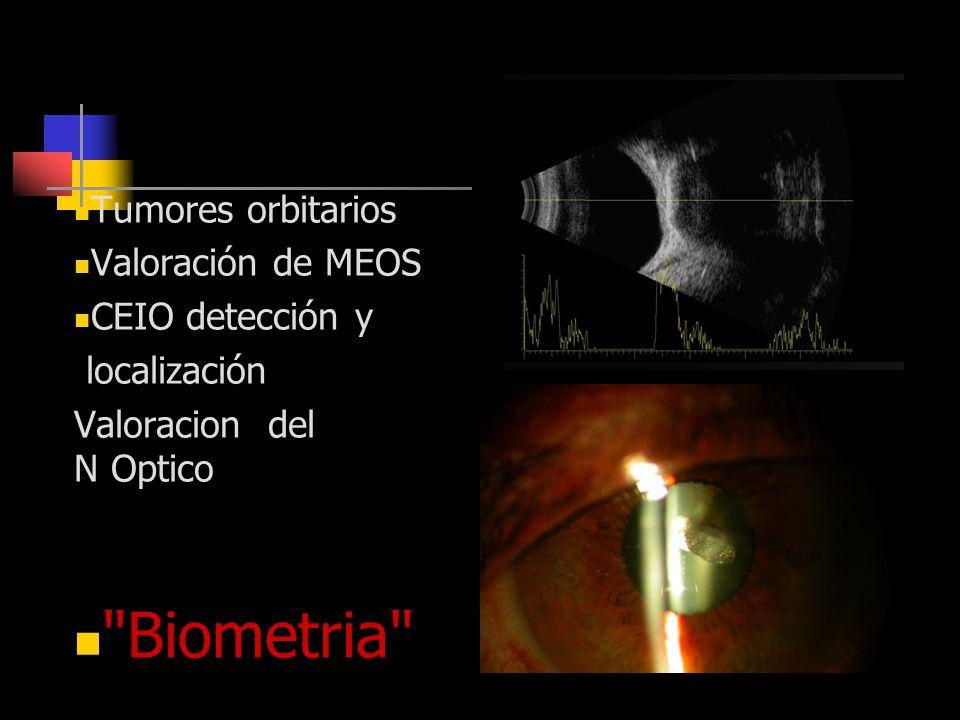 Otras Indicaciones Biometria Tumores orbitarios Valoración de MEOS