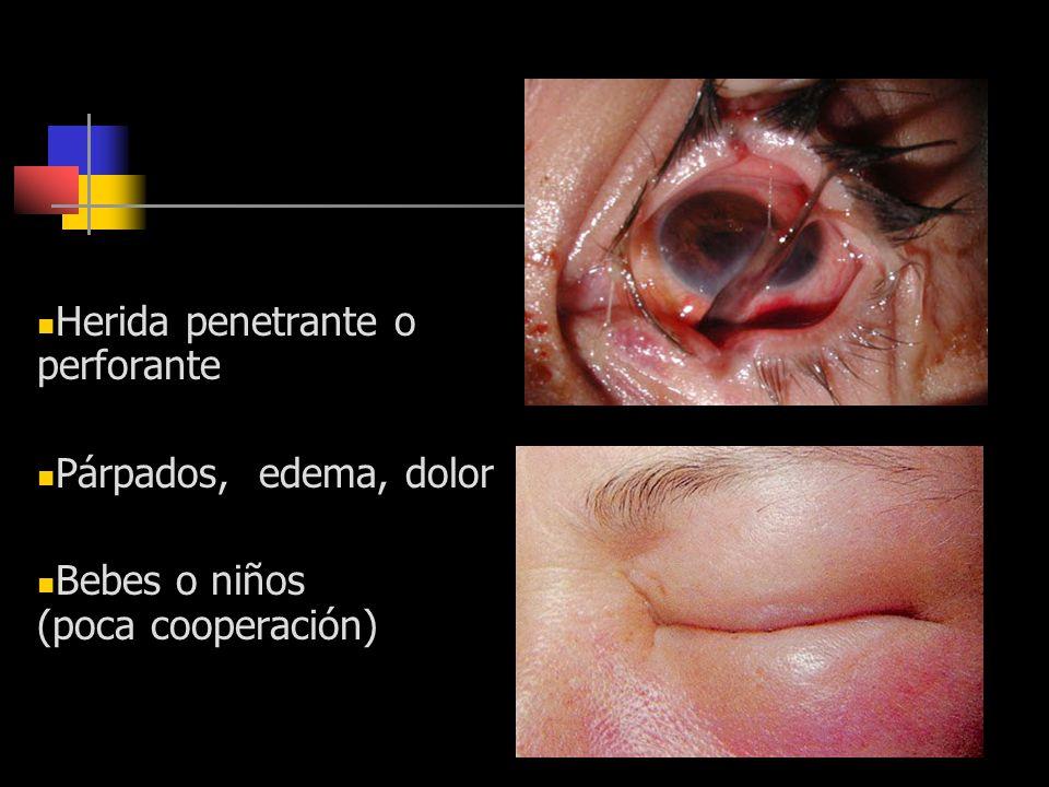 Contraindicaciones Herida penetrante o perforante