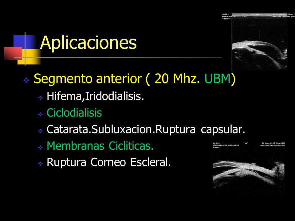 Aplicaciones Segmento anterior ( 20 Mhz. UBM) Hifema,Iridodialisis.