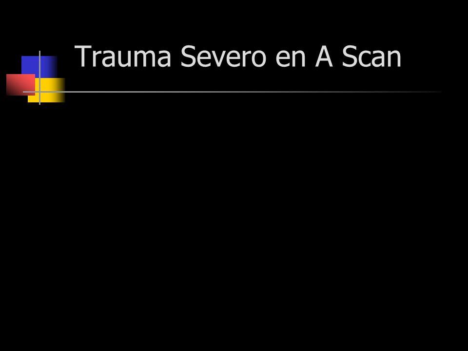 Trauma Severo en A Scan