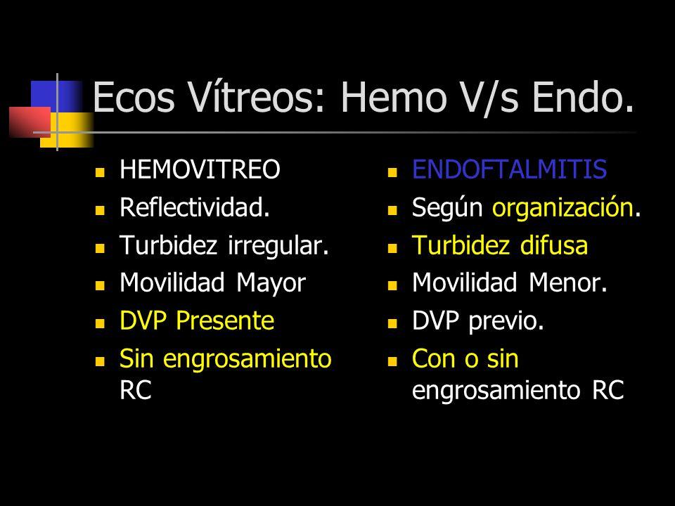Ecos Vítreos: Hemo V/s Endo.