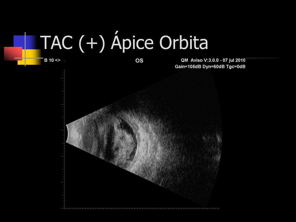 TAC (+) Ápice Orbita