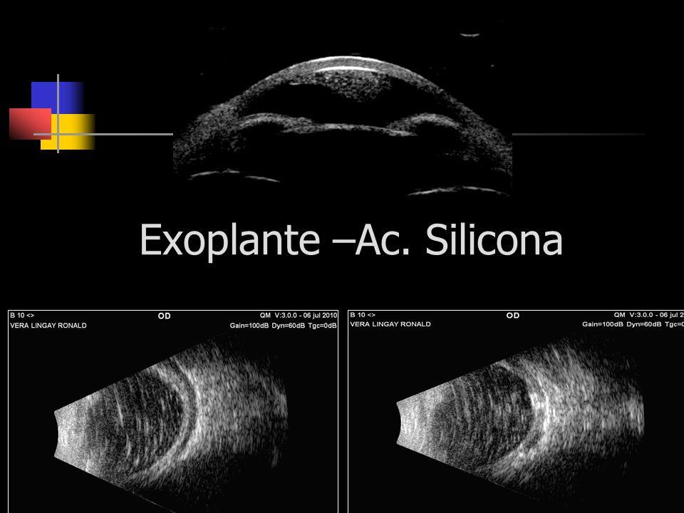 Exoplante –Ac. Silicona