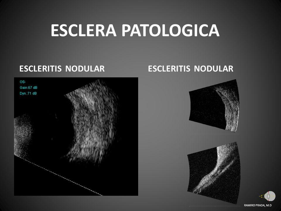 ESCLERA PATOLOGICA ESCLERITIS NODULAR ESCLERITIS NODULAR