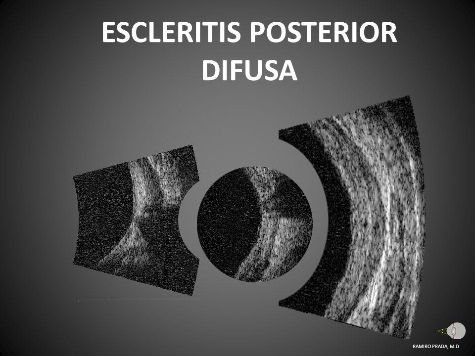ESCLERITIS POSTERIOR DIFUSA