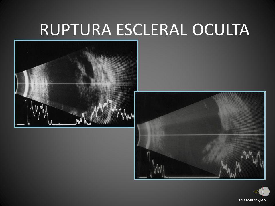 RUPTURA ESCLERAL OCULTA