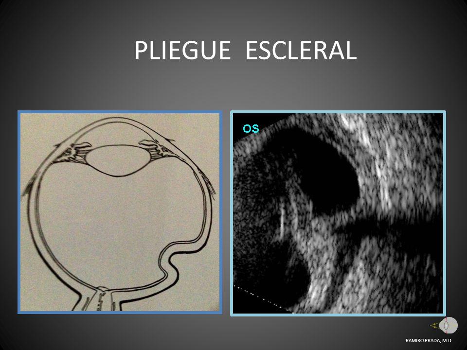 PLIEGUE ESCLERAL RAMIRO PRADA, M.D