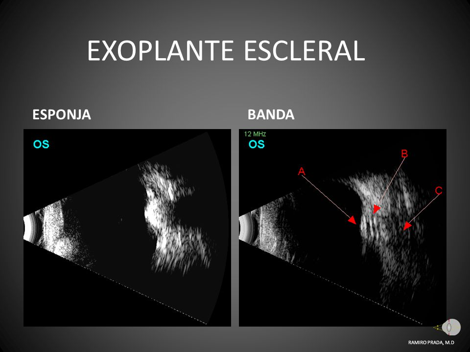 EXOPLANTE ESCLERAL ESPONJA BANDA RAMIRO PRADA, M.D