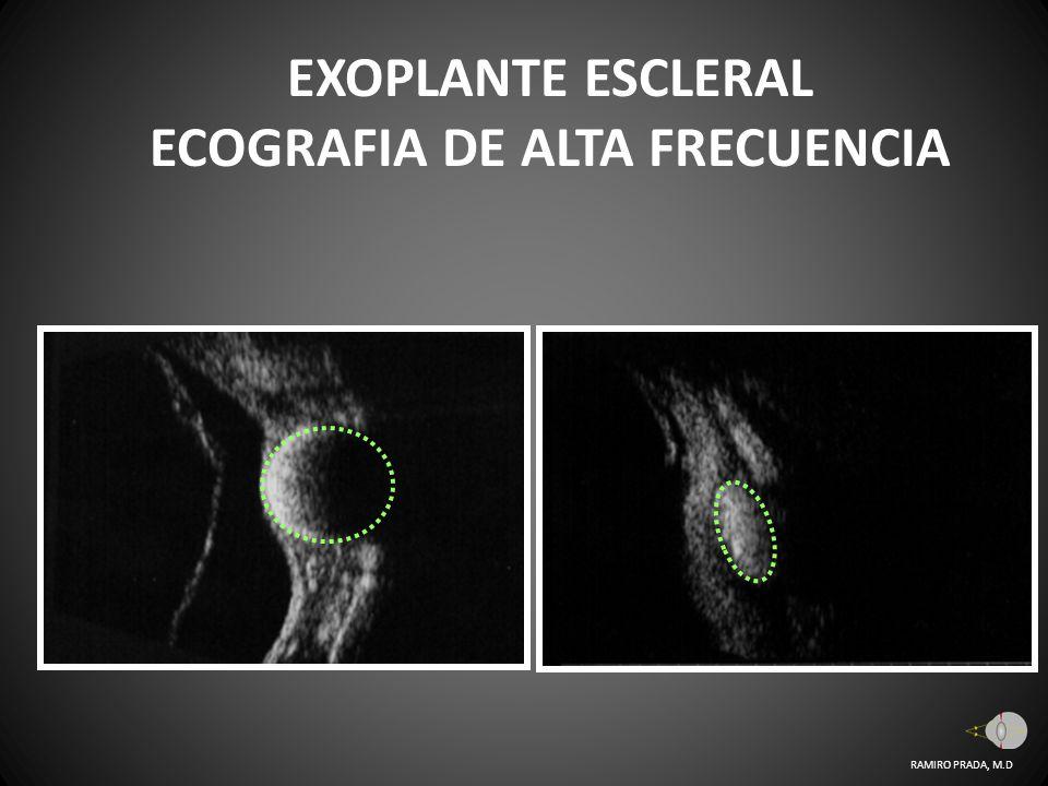 EXOPLANTE ESCLERAL ECOGRAFIA DE ALTA FRECUENCIA