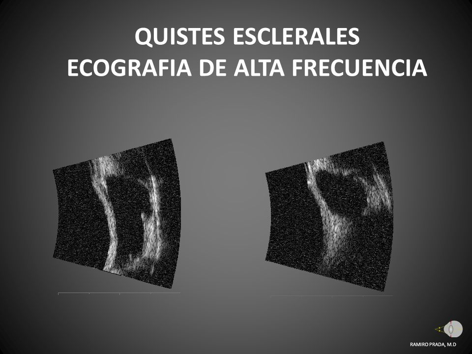 QUISTES ESCLERALES ECOGRAFIA DE ALTA FRECUENCIA