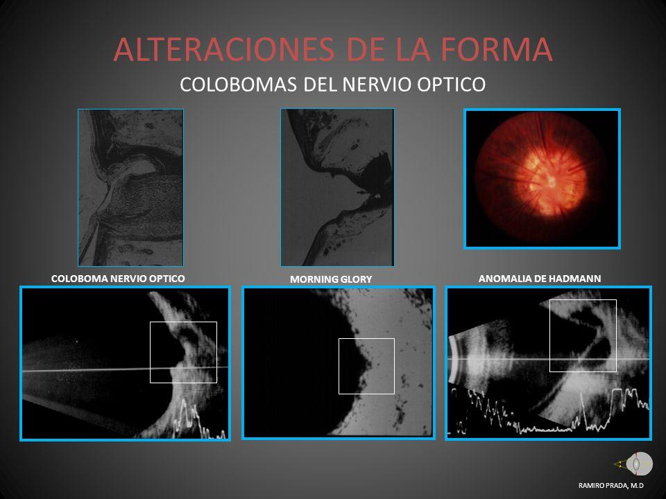 ALTERACIONES DE LA FORMA COLOBOMAS DEL NERVIO OPTICO