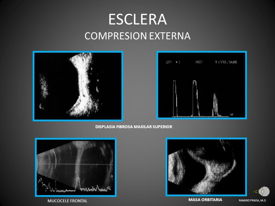 ESCLERA COMPRESION EXTERNA