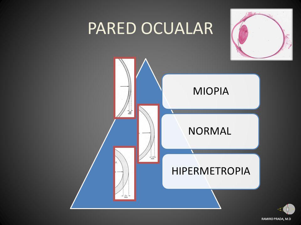 PARED OCUALAR MIOPIA NORMAL HIPERMETROPIA RAMIRO PRADA, M.D