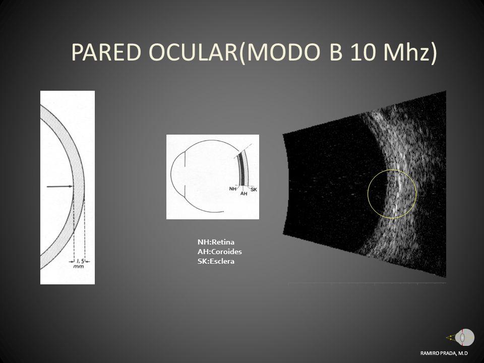 PARED OCULAR(MODO B 10 Mhz)