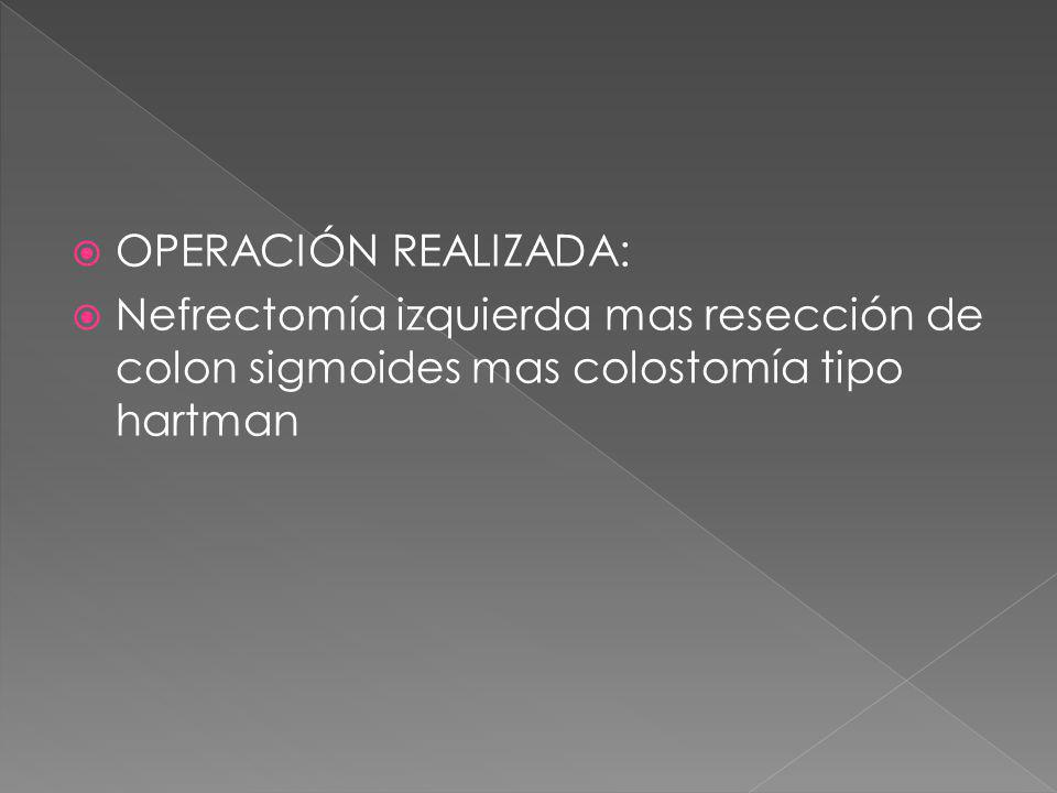 OPERACIÓN REALIZADA: Nefrectomía izquierda mas resección de colon sigmoides mas colostomía tipo hartman.