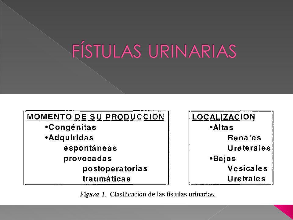 FÍSTULAS URINARIAS