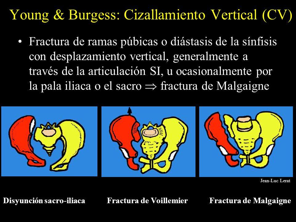 Young & Burgess: Cizallamiento Vertical (CV)