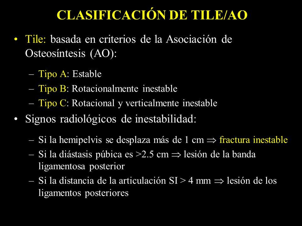 CLASIFICACIÓN DE TILE/AO