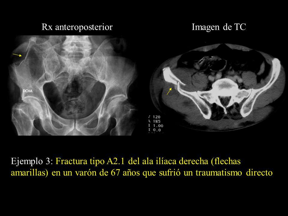 Rx anteroposterior Imagen de TC.