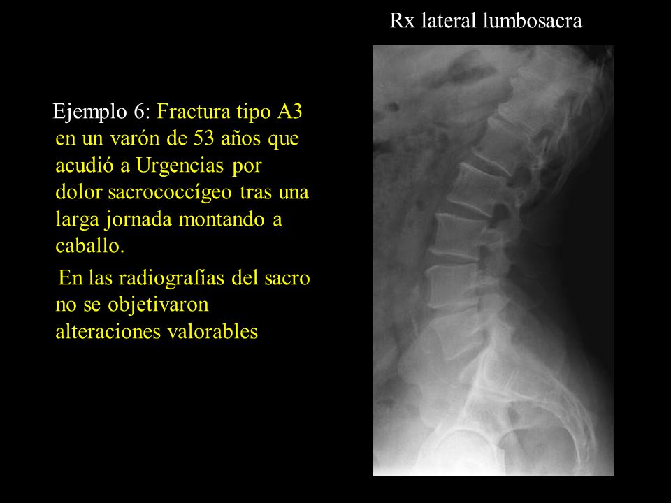 Rx lateral lumbosacra