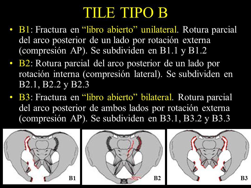 TILE TIPO B