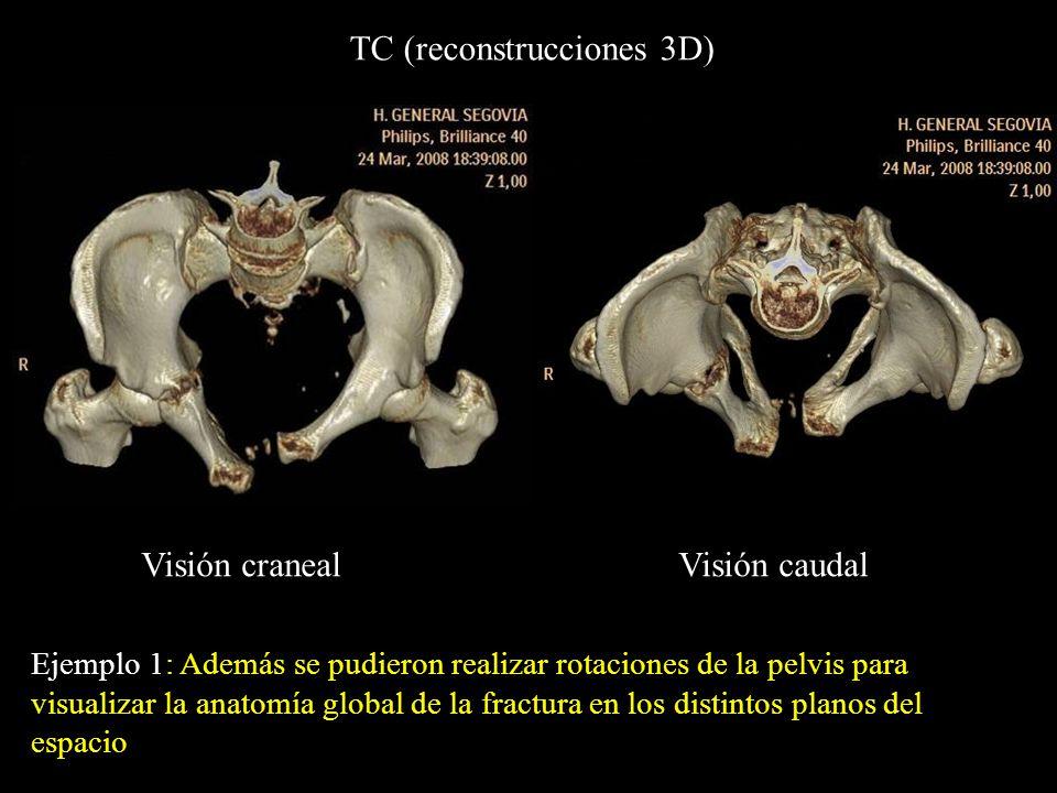 TC (reconstrucciones 3D)