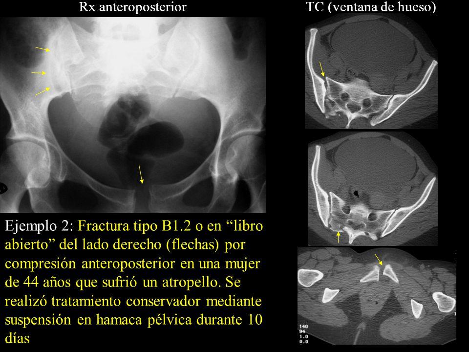 Rx anteroposterior TC (ventana de hueso)