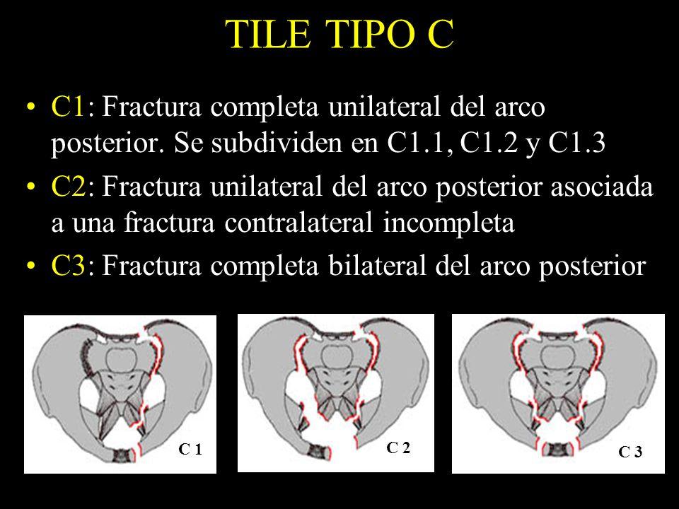 TILE TIPO C C1: Fractura completa unilateral del arco posterior. Se subdividen en C1.1, C1.2 y C1.3.