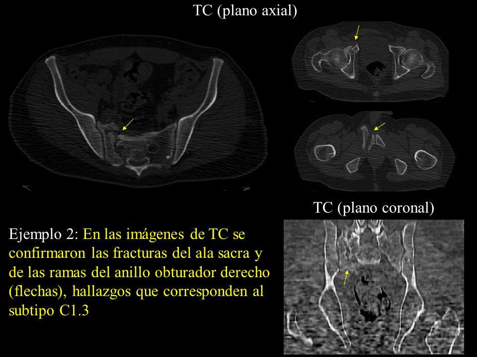 TC (plano axial) TC (plano coronal)