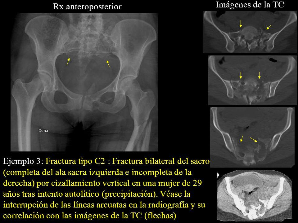 Imágenes de la TC Rx anteroposterior.