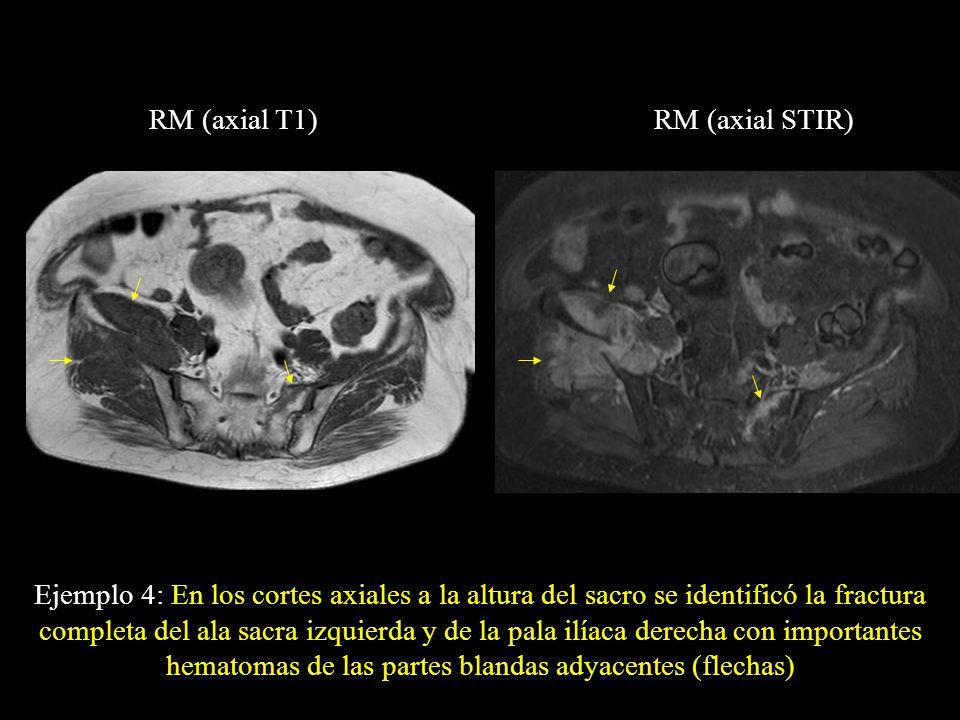 RM (axial T1) RM (axial STIR)