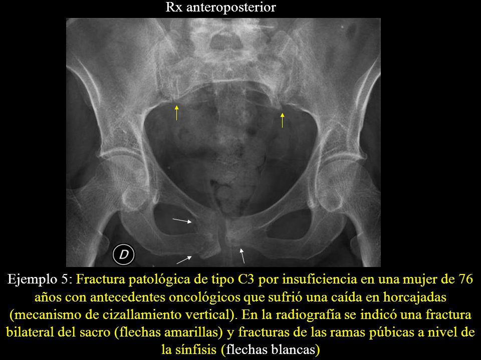Rx anteroposterior