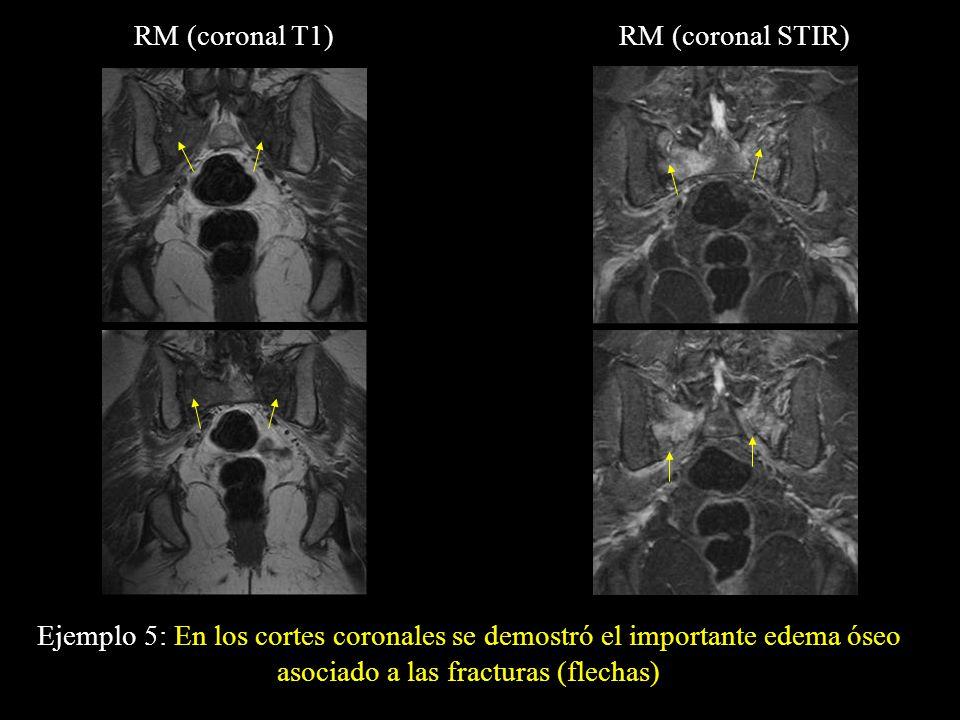 RM (coronal T1) RM (coronal STIR) Ejemplo 5: En los cortes coronales se demostró el importante edema óseo asociado a las fracturas (flechas)