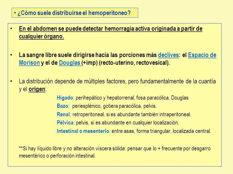 ¿Cómo suele distribuirse el hemoperitoneo