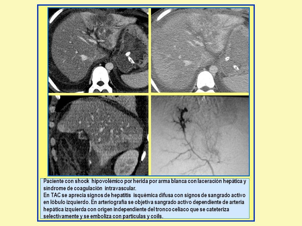 Paciente con shock hipovolémico por herida por arma blanca con laceración hepática y síndrome de coagulación intravascular.