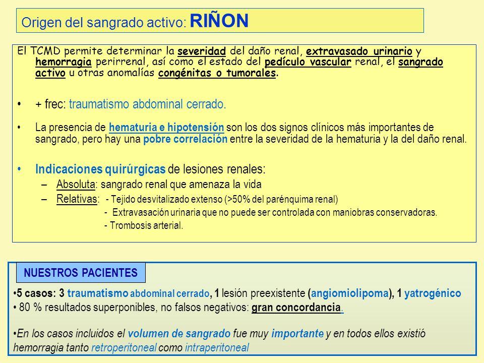 Origen del sangrado activo: RIÑON