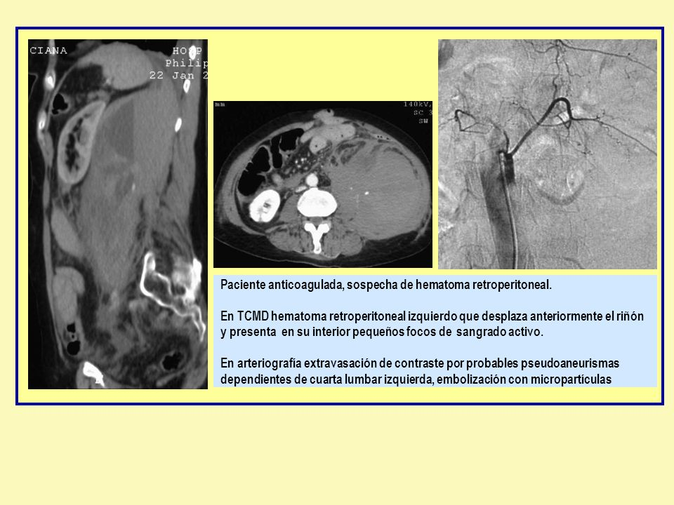 Paciente anticoagulada, sospecha de hematoma retroperitoneal
